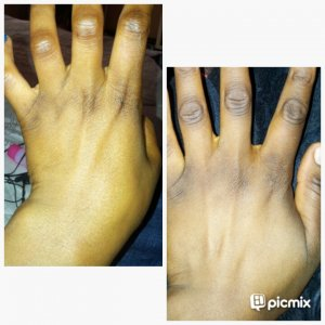 Pure skin black spots remover,,,, 10 days Knuckle review.